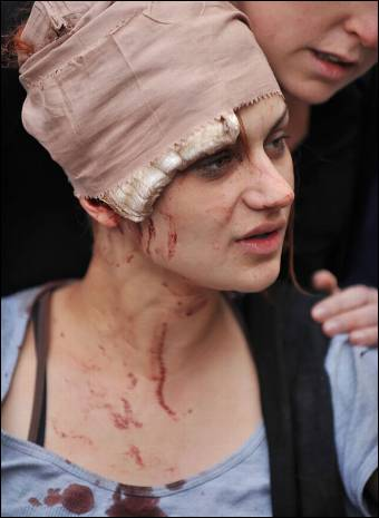 manifestante-herida