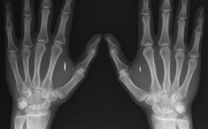 IMPLANTES MICROCHIPS